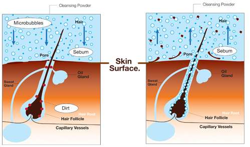 Microbubble Hair Follicle Cleansing